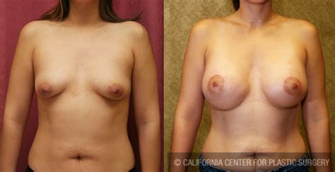 breast lift surgery areola beautiful jpg 1024x528