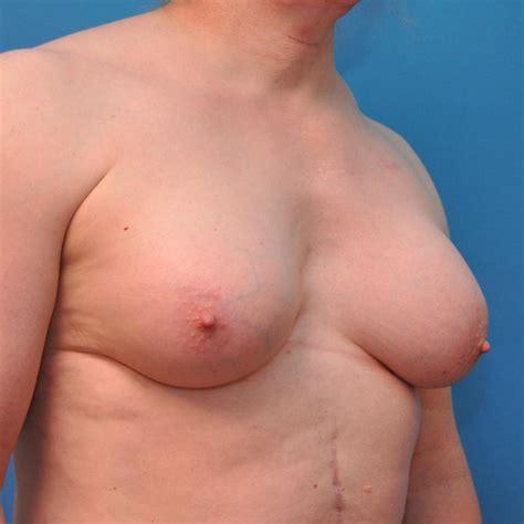 breast growing transsexual jpg 1000x1000