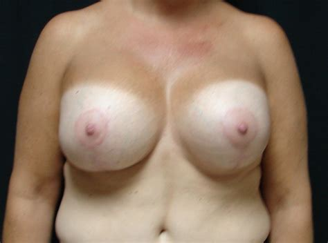 Breast augmentation virginia beach, va chesapeake breast jpg 688x512